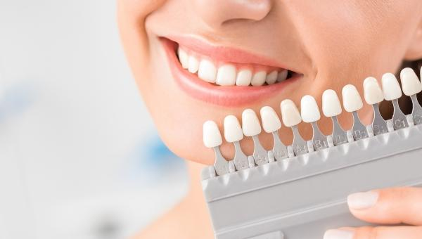 Have Yellow Teeth? Kirby Smiles in Pearland Offers Teeth Whitening