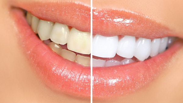 How Our Pearland Cosmetic Dentist Recommends You Keep Your Teeth White After Whitening Treatment
